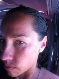 Wategos surfing injury - black eye from a fellow board rider!